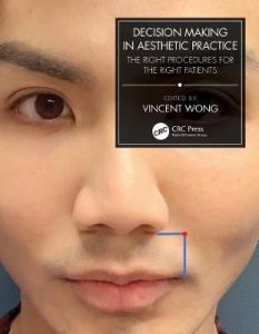 Decision Making in Aesthetic Practice: The Right Procedures for the Right Patients by Vincent Wong (Private Practice, London, UK)
